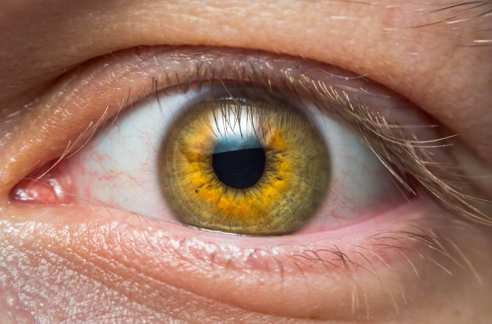 Желтый цвет глаз - здоровое око
