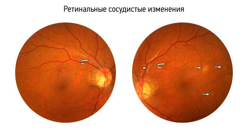 Лечение эпиретинального фиброза глаза народными средствами