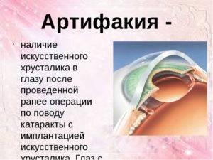 Артифакия - будьздоров