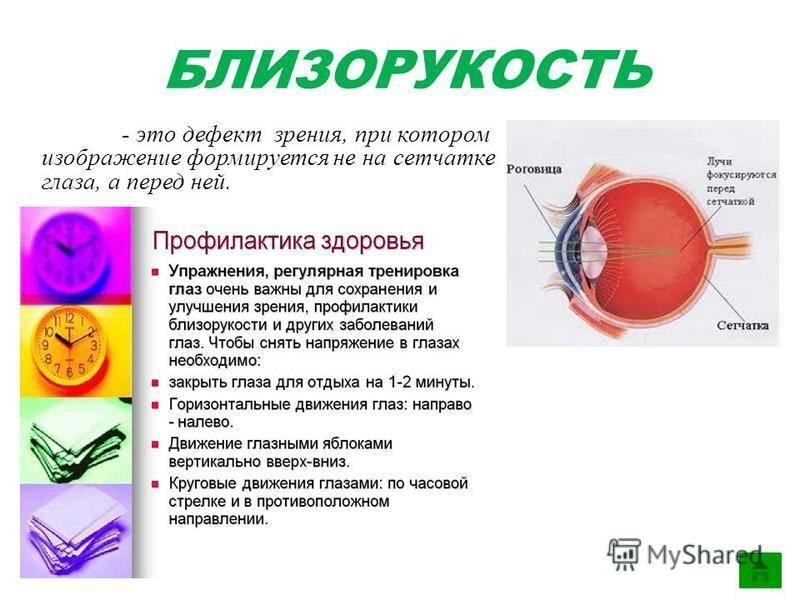 Близорукость - это минус или плюс, причины, факторы риска, лечение