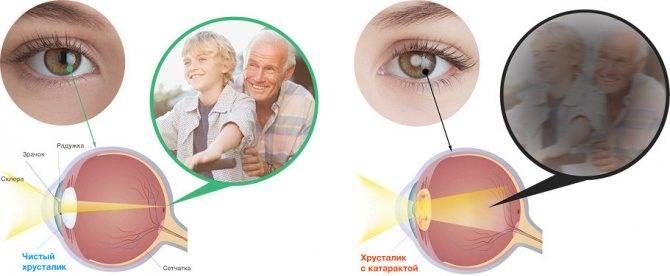 После родов упало зрение – причины, лечение