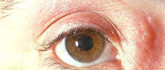 Грибковые заболевания глаз фото лечение симптомы причины - мед портал tvoiamedkarta.ru