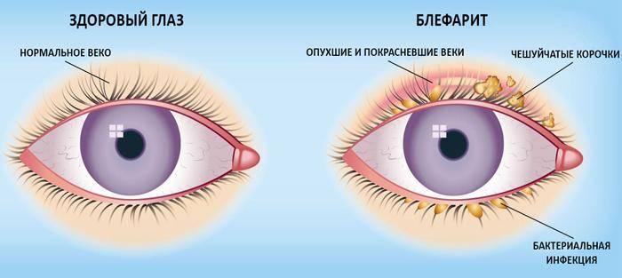Может ли линза выпасть из глаза, почему это случается и что делать