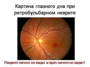 Ретробульбарный неврит: что это такое, симптомы и лечение заболевания