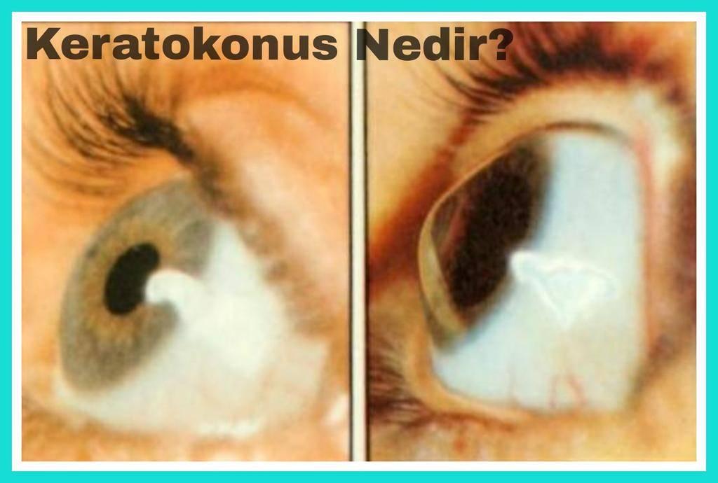 Кератоконус, его виды, симптомы, причины возникновения и лечение