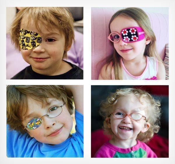 Амблиопия - что это такое? амблиопия у детей: степени и лечение