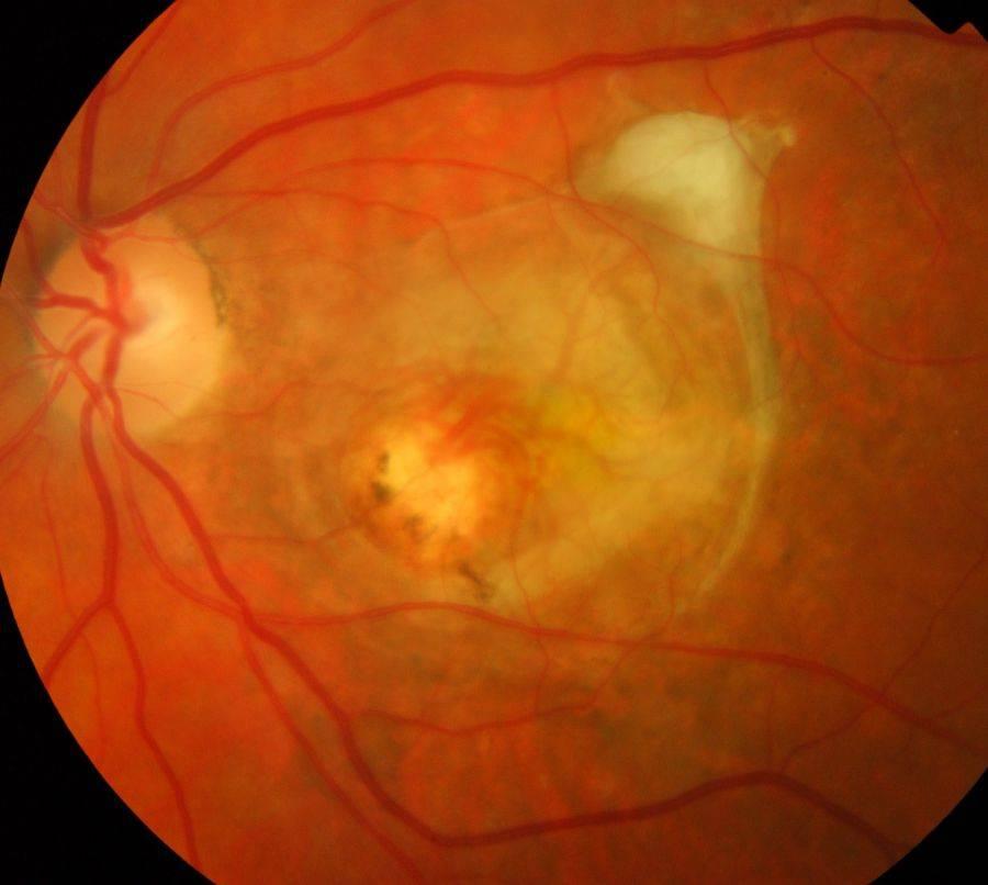Отслойка сетчатки глаза: фото, симптомы, лечение, классификация, последствия и профилактика отслойки сетчатки