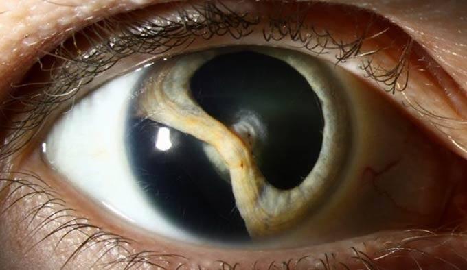 Что такое колобома глаза: причины, симптомы, лечение oculistic.ru что такое колобома глаза: причины, симптомы, лечение