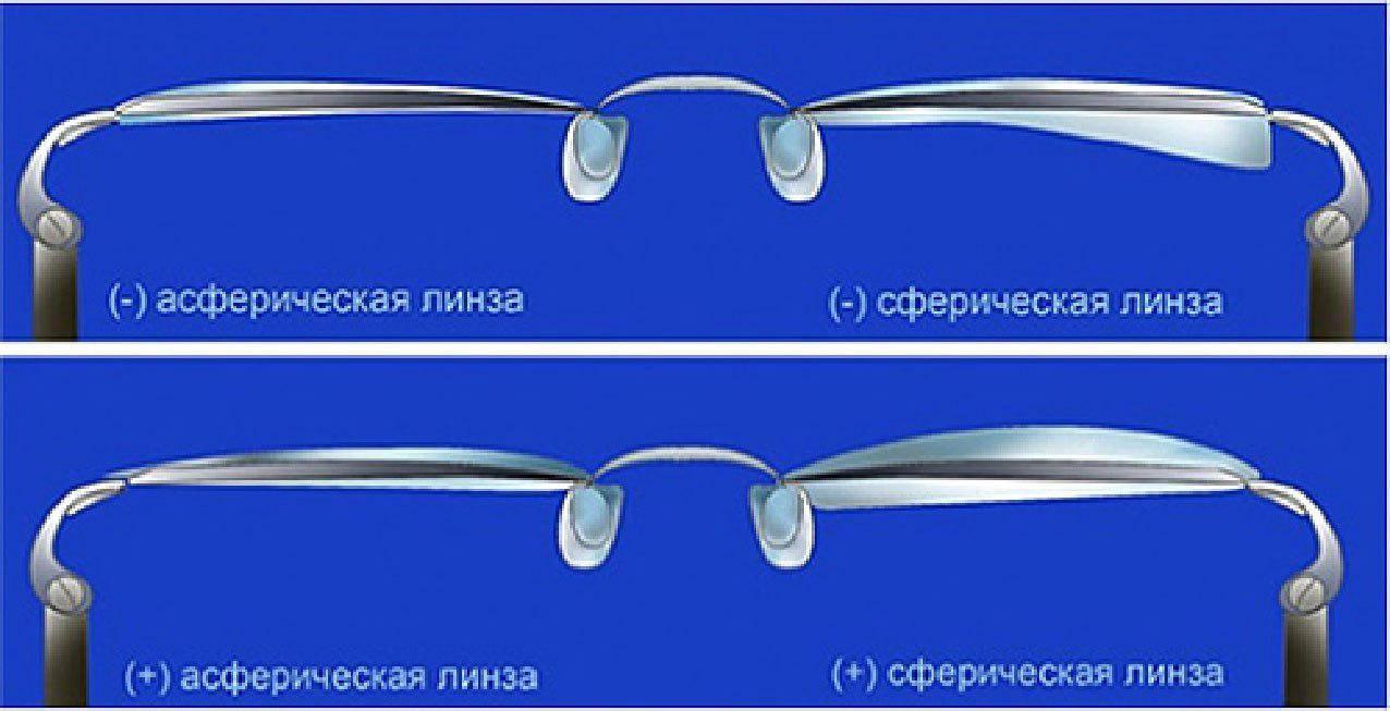 """Асферические очковые линзы: плюсы и минусы - """"здоровое око"""""""