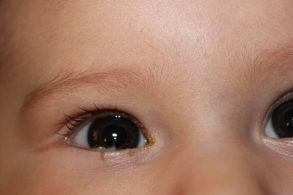 Закисает глазик у новорожденного: причины, лечение препаратами и народными средствами