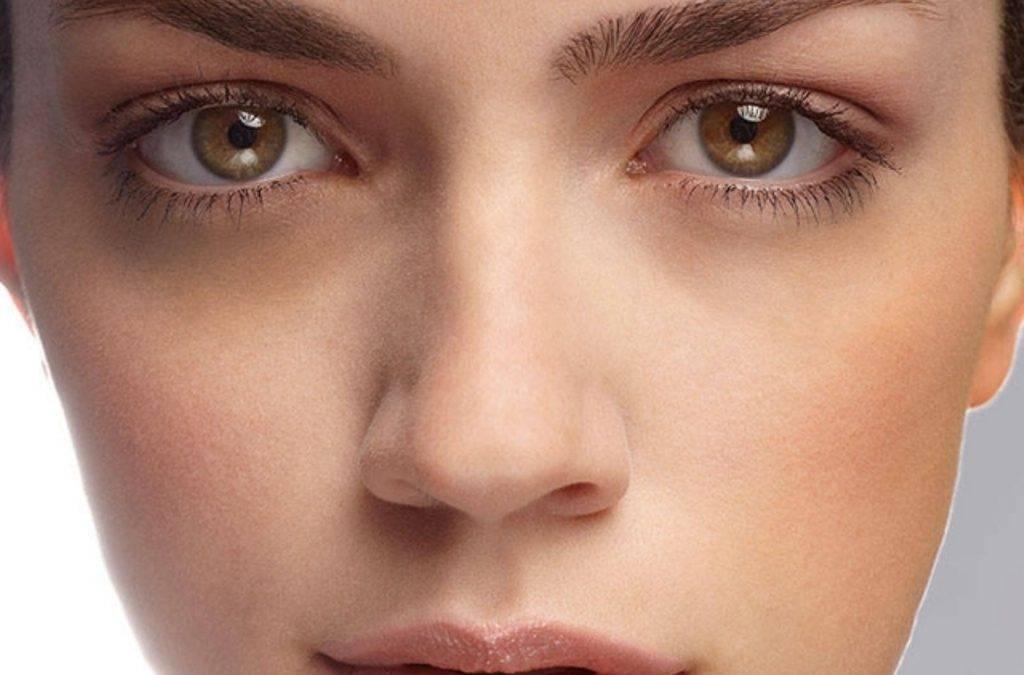 Желтые круги под глазами: причины и лечение