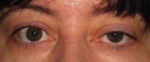 Почему дергается нижнее веко правого или левого глаза
