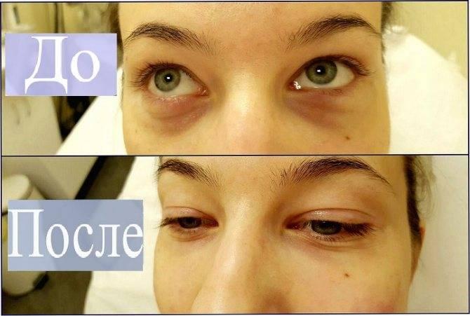 Почему появляются синяки в уголках глаз и как их убрать