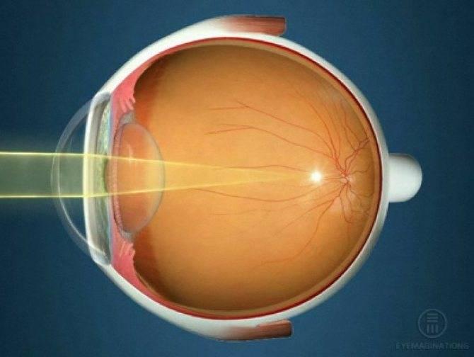 Падает зрение? виной всему прогрессирующая миопия