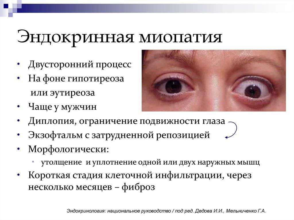 Миопия и миопатия глаз: описание и лечение заболевания, список хороших капель при близорукости