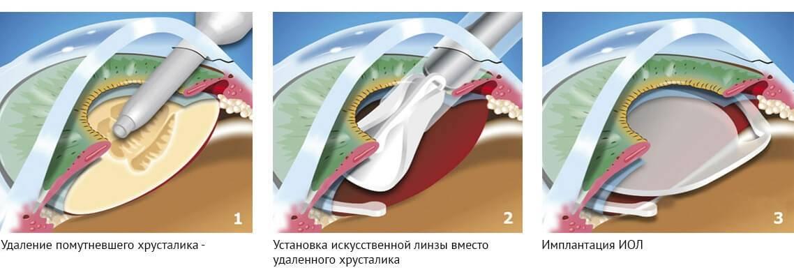 Факоэмульсификация катаракты иимплантацией иол— описание метода иоперации позамене хрусталика, цены наискусственные хрусталики