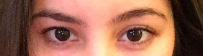 Один глаз стал меньше другого, причины почему и что делать