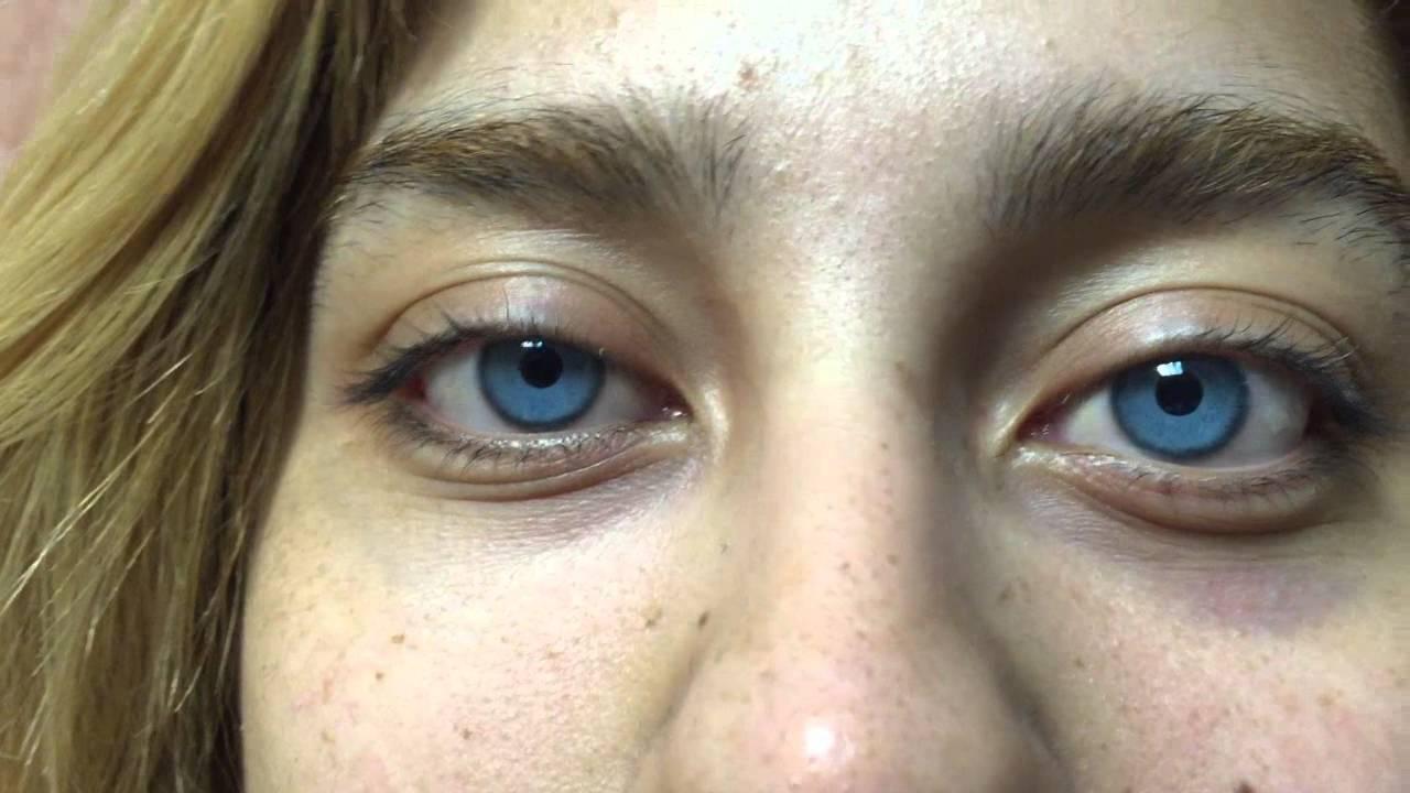 Операция по изменению цвета глаз в германии