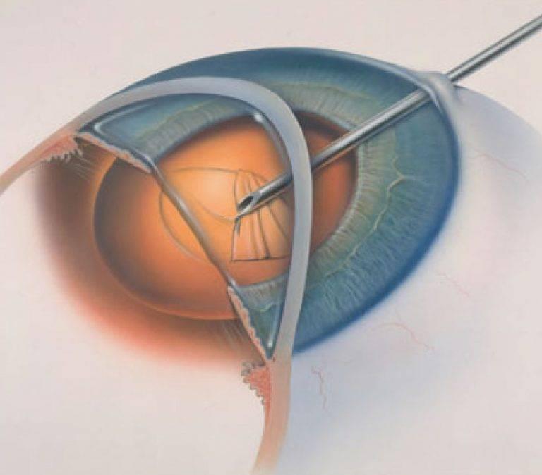 Как долго восстанавливается зрение после удаления катаракты