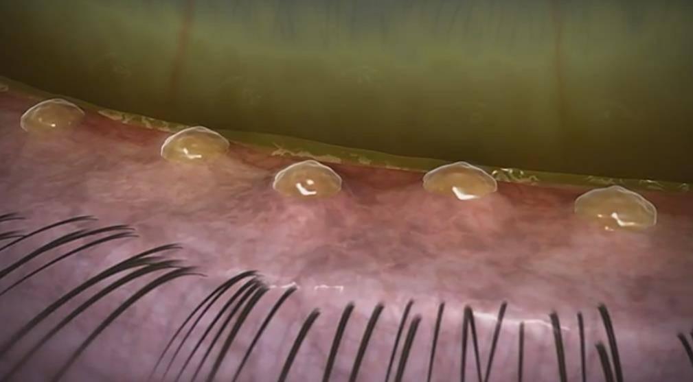 Мейбомиевый блефарит: симптомы и лечение заболевания