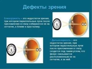 Зрение минус 3 - что это значит, как видит человек, как восставить зрение
