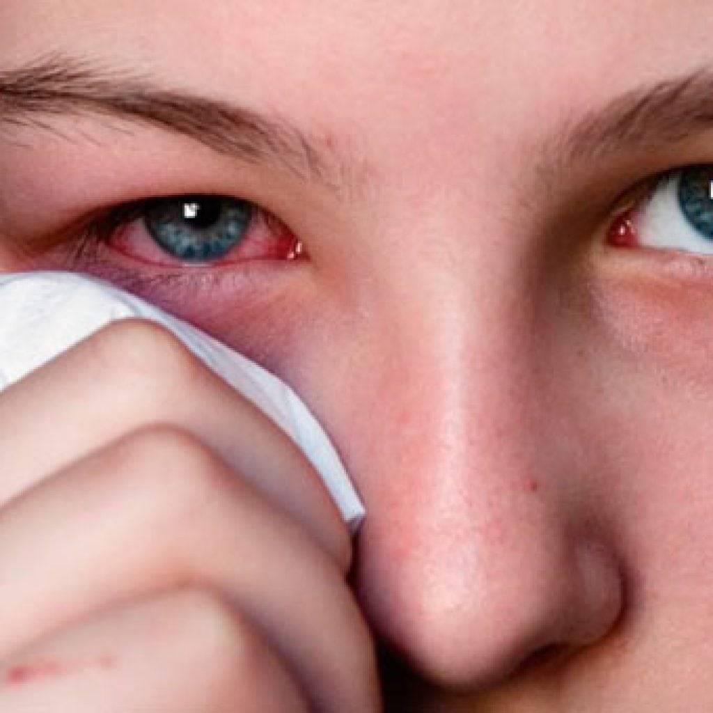 Аллергия на веках: причины, симптомы, лечение, меры профилактики
