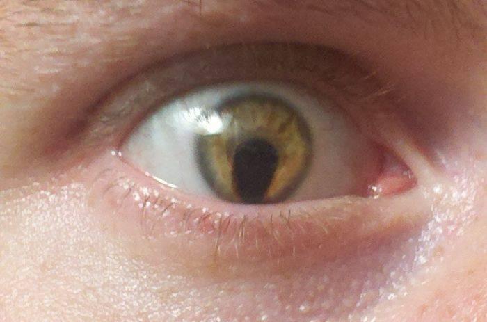 Колобома радужки глаза - что это такое, формы и причины появления