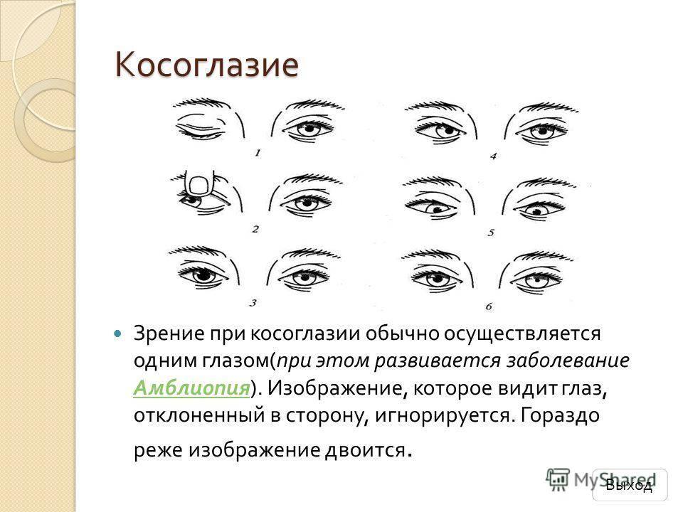 Почему один глаз больше другого