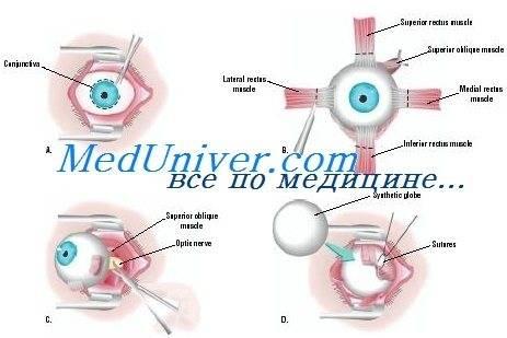 Подробности внутриглазной операции