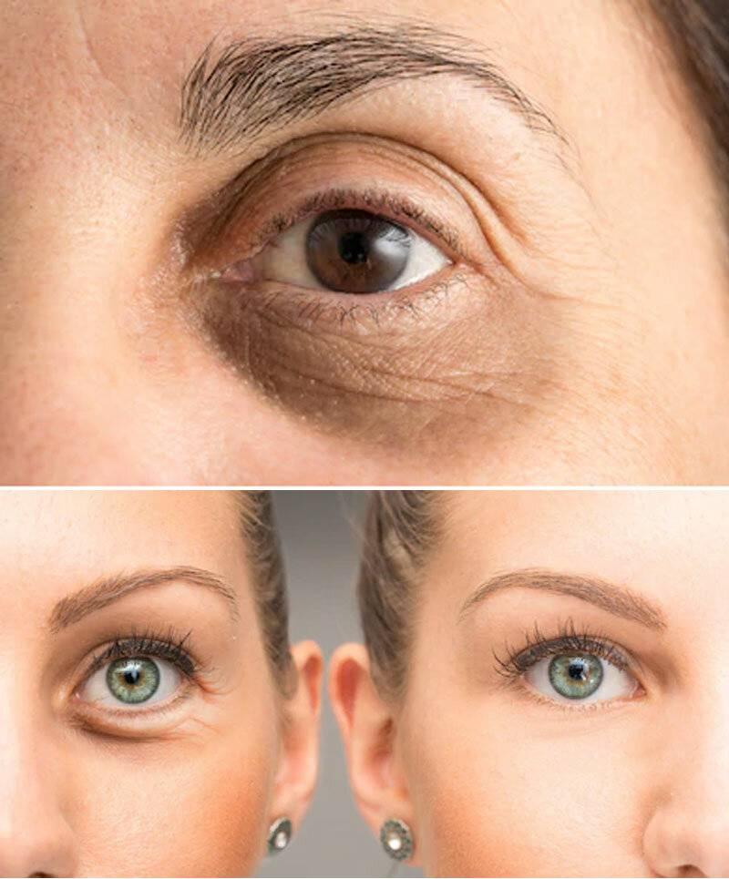 Как убрать синяки под глазами в домашних условиях быстро: народные, аптечные и косметические средства от тёмных кругов, гимнастика, массаж