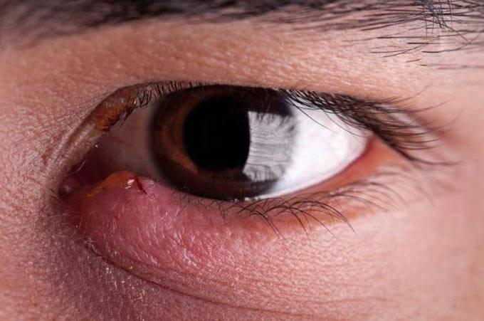 """Мейбомит верхнего или нижнего века глаза - причины и эффективные методы лечения мейбомиита - moscoweyes.ru - сайт офтальмологического центра """"мгк-диагностик"""""""