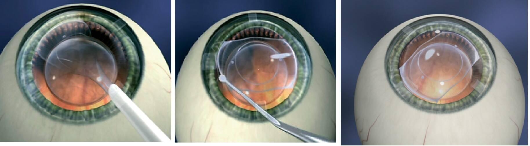 Факоэмульсификация катаракты: операция удаления с имплантацией иол, вторичное лечение лазером, противопоказания к технике дисцизии