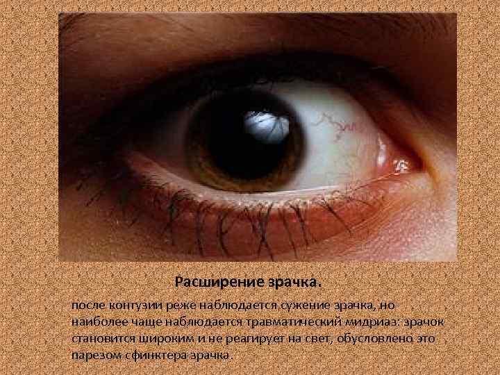 Какие зрачки у наркозависимых людей под действием наркотика oculistic.ru