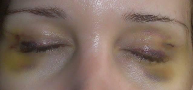 Темные круги под глазами: причины, болезни, как быстро убрать