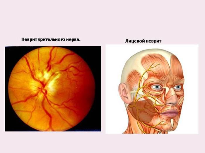 Неврит зрительного нерва: виды, симптомы, лечение и причины