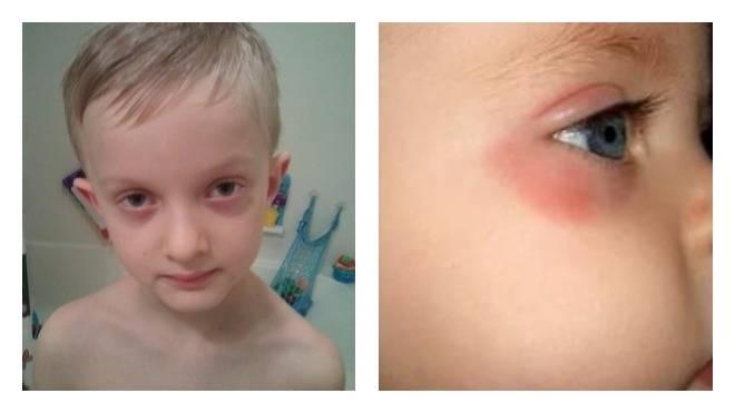 Причины покраснения под глазами у ребенка