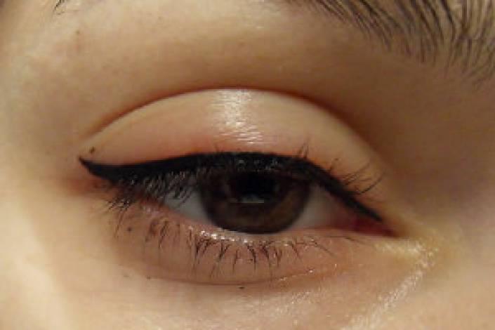 Последствия татуажа век: болезни глаз, эстетические дефекты, аллергия
