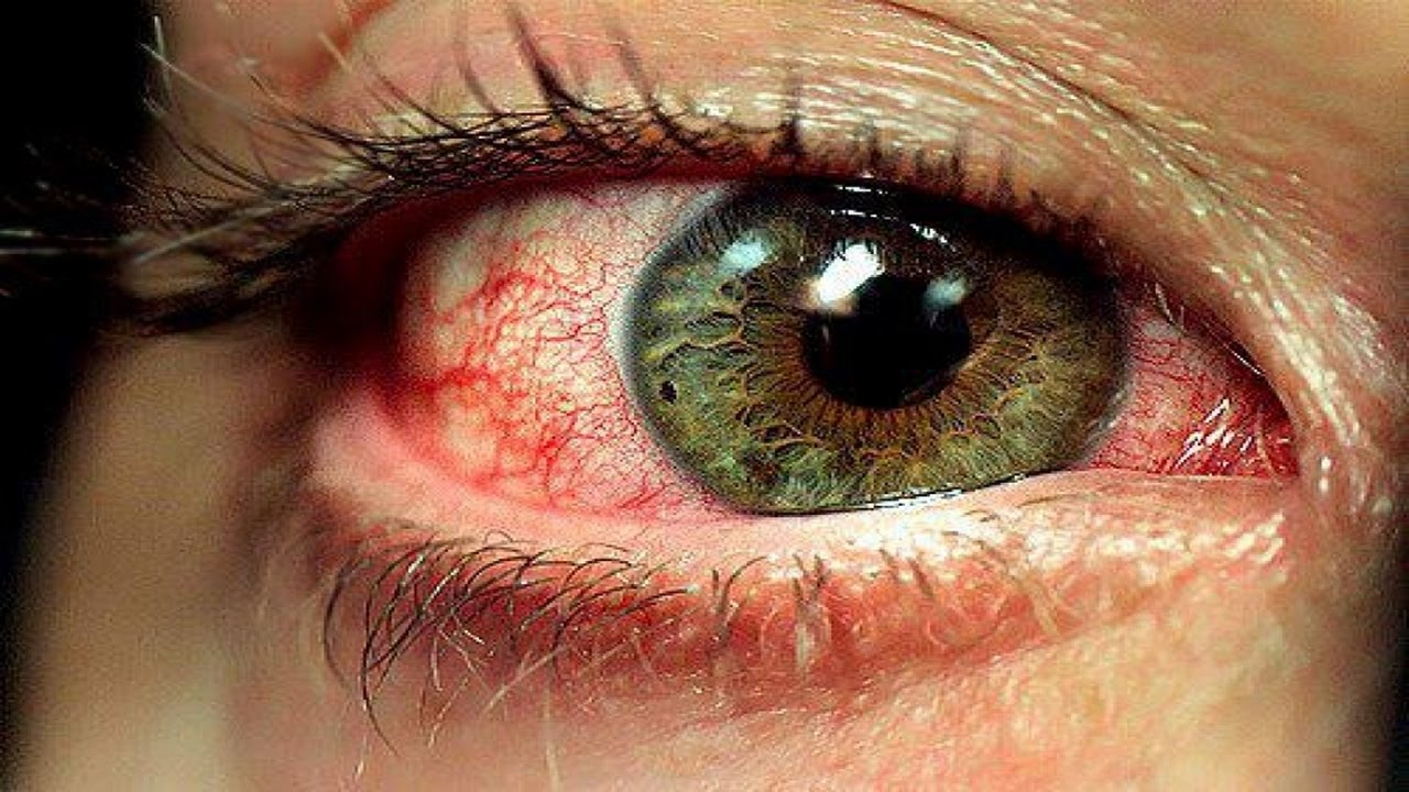 У вас красные глаза от компьютера? что делать в домашних условиях?