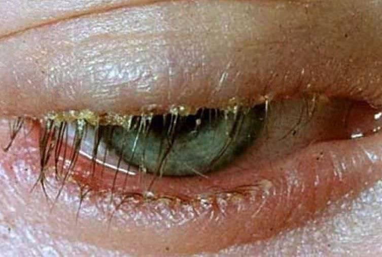 Трихиаз века глаза: симптомы, причины и лечение