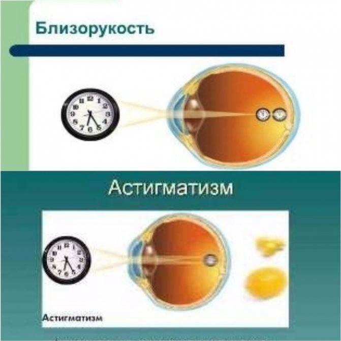 Что такое миопический астигматизм — причины и лечение