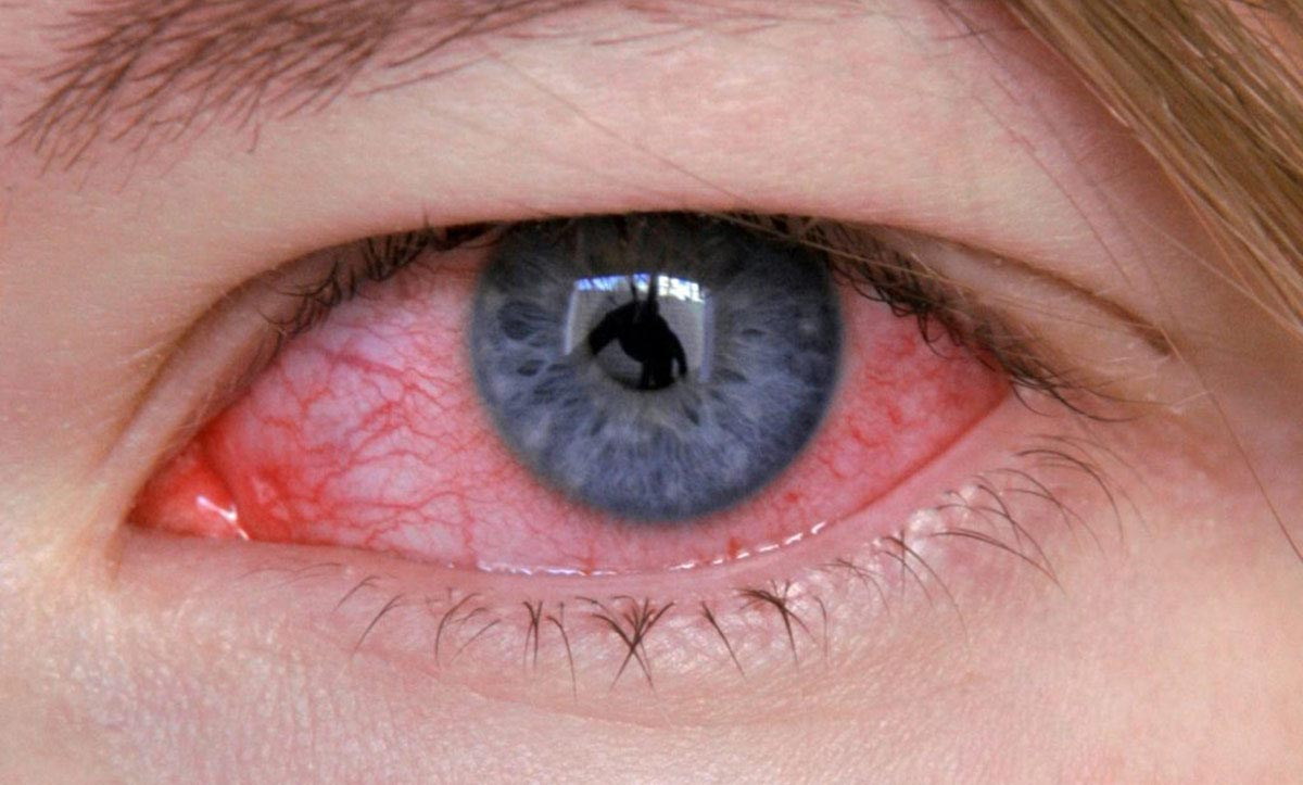 Грибок глаз - симптоматика, причины появления, лечение