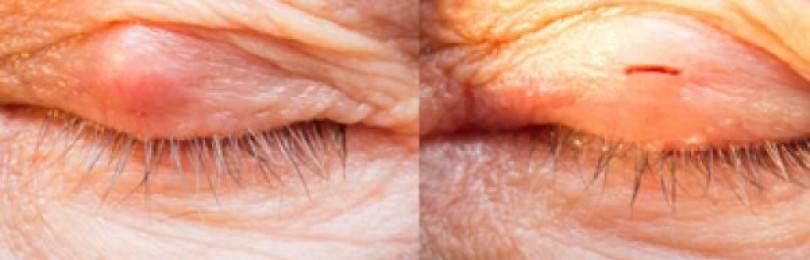 Халязион на глазу верхнего и нижнего века лечение