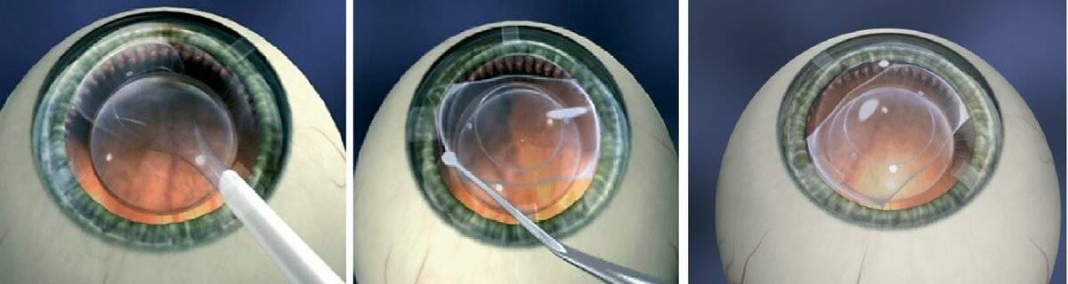 Линзы после лазерной коррекции зрения: можно ли носить, в том числе цветные и кому нельзя применять, помогают ли контактные средства?