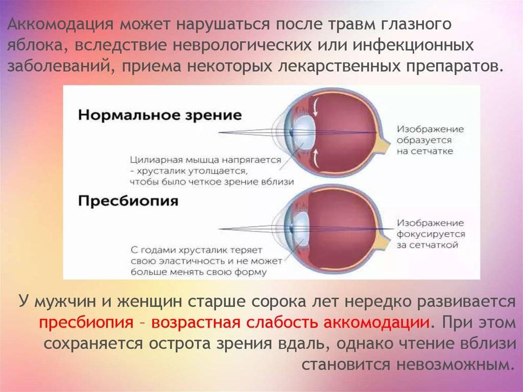 """Нарушение аккомодации: причины, типы и лечение - """"здоровое око"""""""