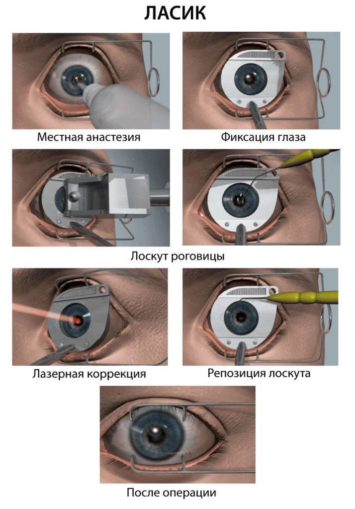 Операция помогает не всем? почему после лазерной коррекции зрения один глаз видит хуже другого