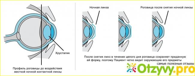 Ночные линзы для восстановления зрения: отзывы врачей