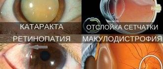 """Плохо вижу вблизи: причины и методы лечения - """"здоровое око"""""""