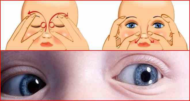 Дакриоцистит у новорожденных, симптомы и лечение