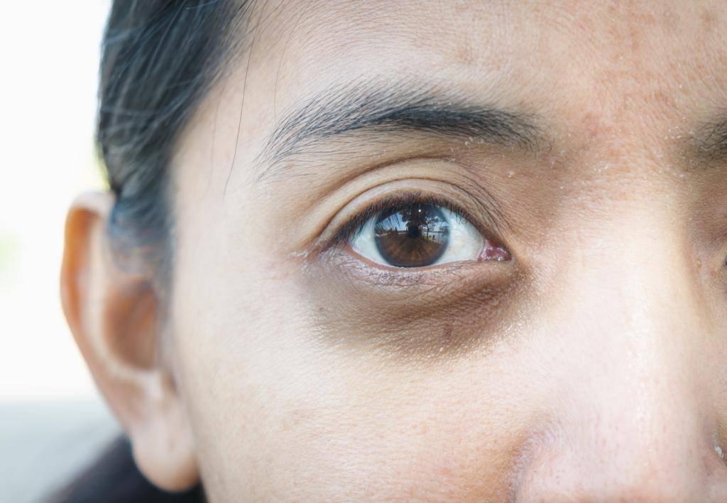 Причины возникновения мешков под глазами у мужчин и варианты лечения