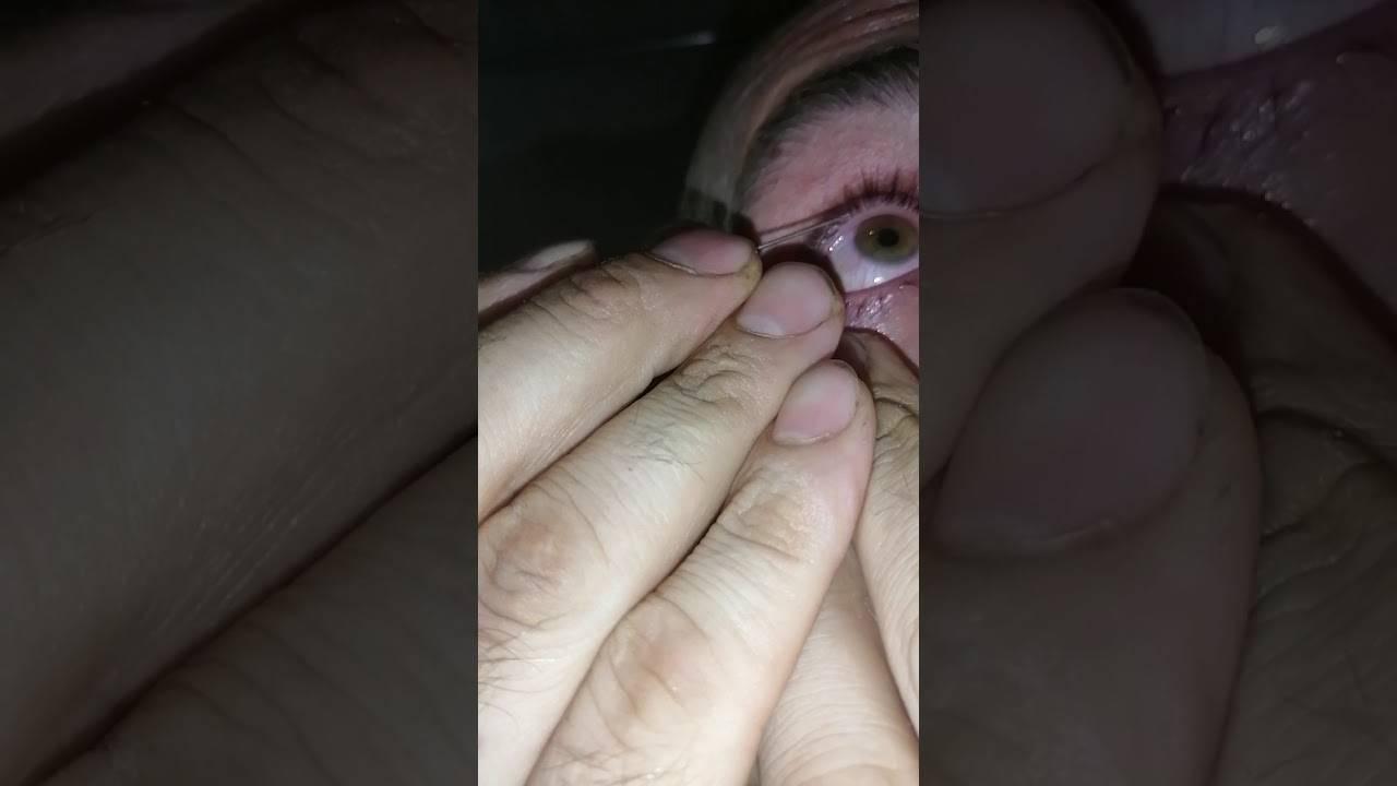 Вытащили стружку из глаза все равно болит